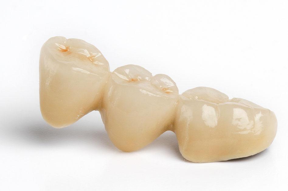 Porcelain Fused to Metal (PFM) Dental Crowns & Bridges ...